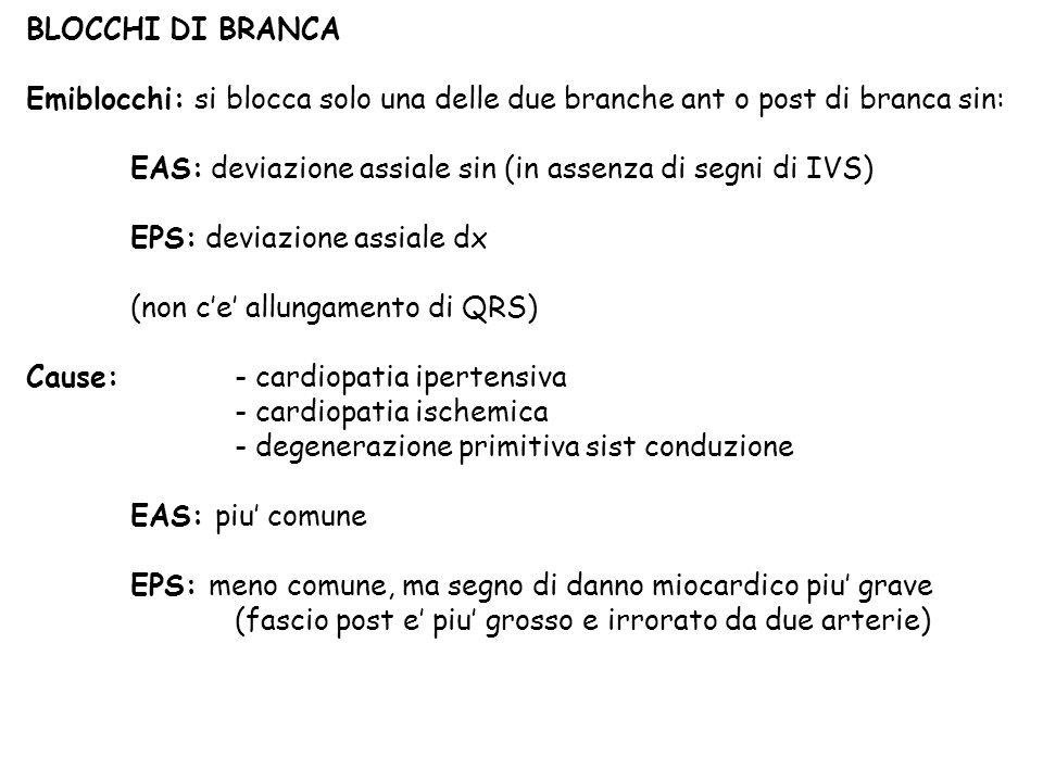 BLOCCHI DI BRANCA Emiblocchi: si blocca solo una delle due branche ant o post di branca sin: