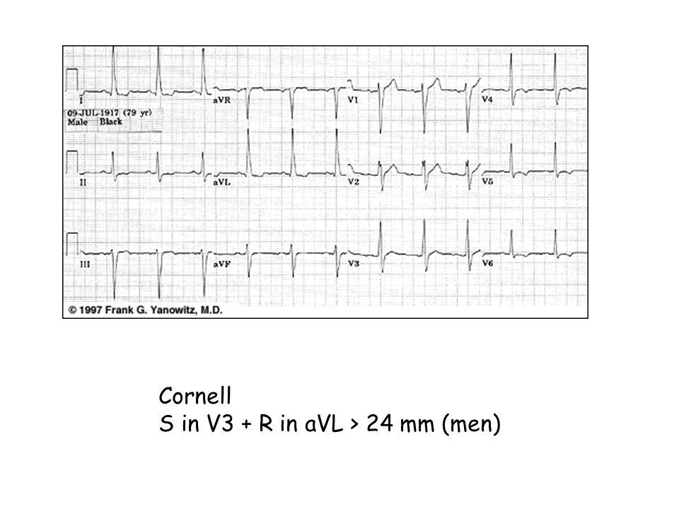 Cornell S in V3 + R in aVL > 24 mm (men)