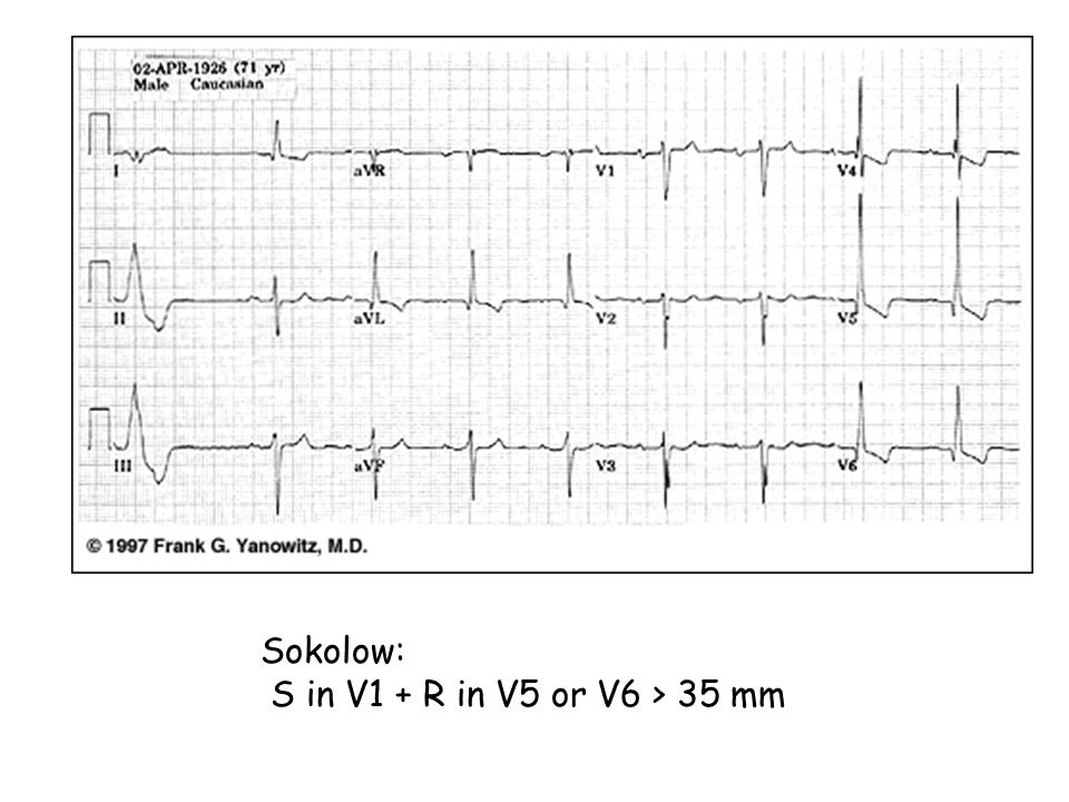 Sokolow: S in V1 + R in V5 or V6 > 35 mm