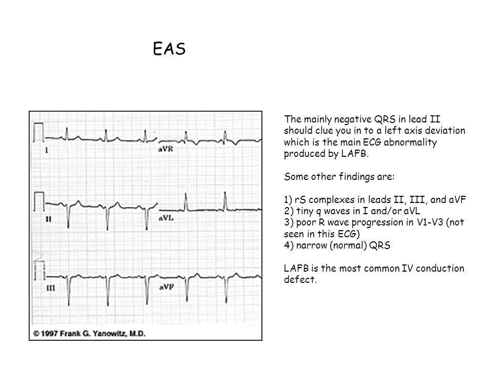 EAS The mainly negative QRS in lead II should clue you in to a left axis deviation which is the main ECG abnormality produced by LAFB.