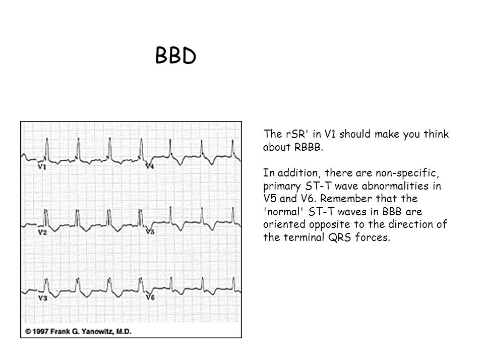 BBD The rSR in V1 should make you think about RBBB.