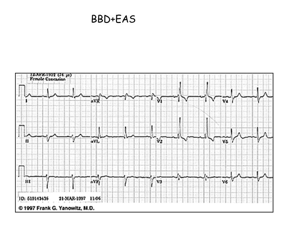 BBD+EAS