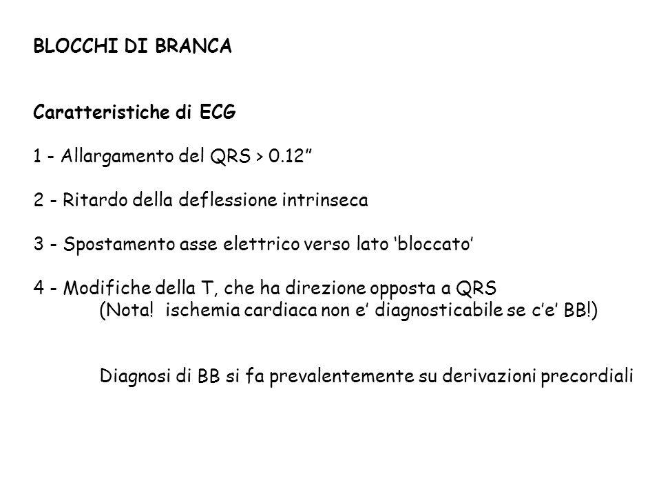BLOCCHI DI BRANCA Caratteristiche di ECG. 1 - Allargamento del QRS > 0.12 2 - Ritardo della deflessione intrinseca.