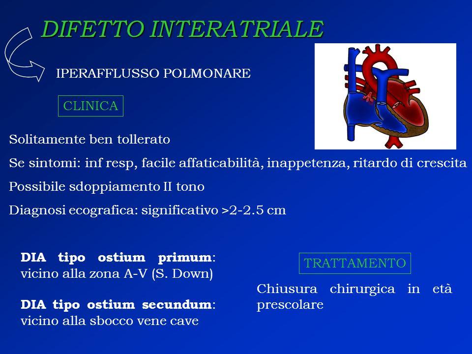 DIFETTO INTERATRIALE IPERAFFLUSSO POLMONARE CLINICA