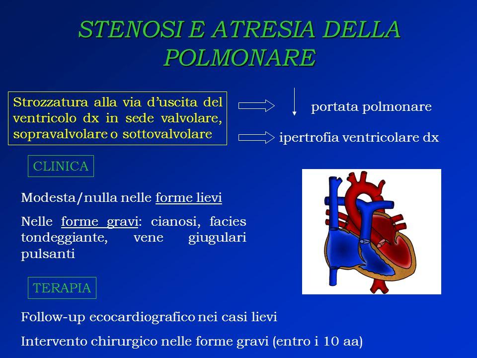STENOSI E ATRESIA DELLA POLMONARE