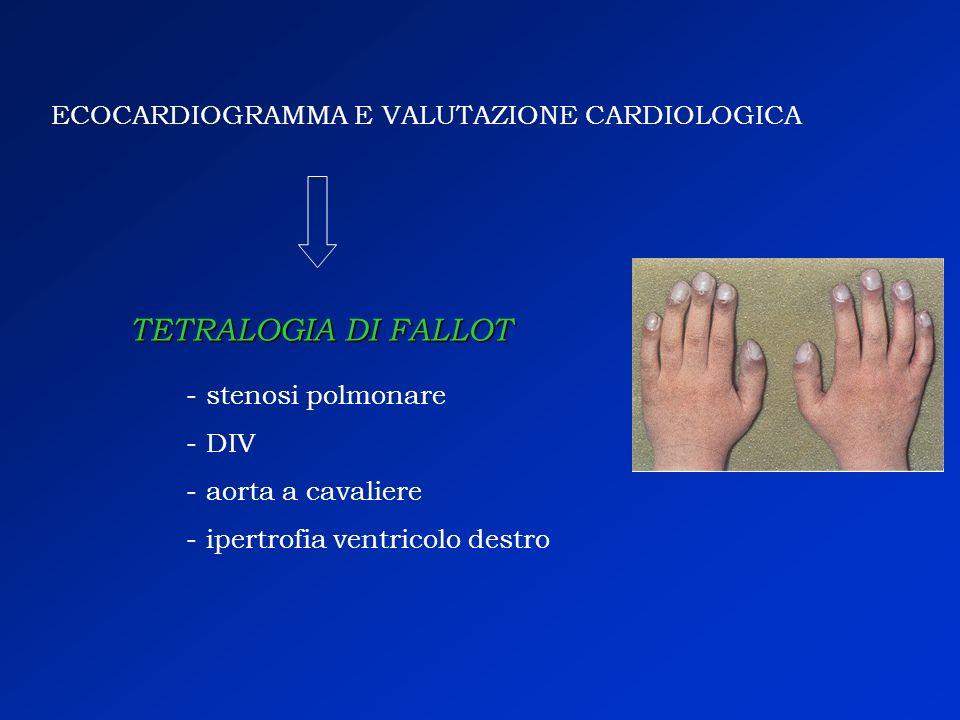 TETRALOGIA DI FALLOT ECOCARDIOGRAMMA E VALUTAZIONE CARDIOLOGICA