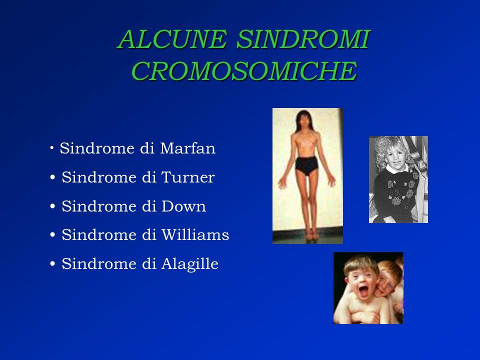 ALCUNE SINDROMI CROMOSOMICHE