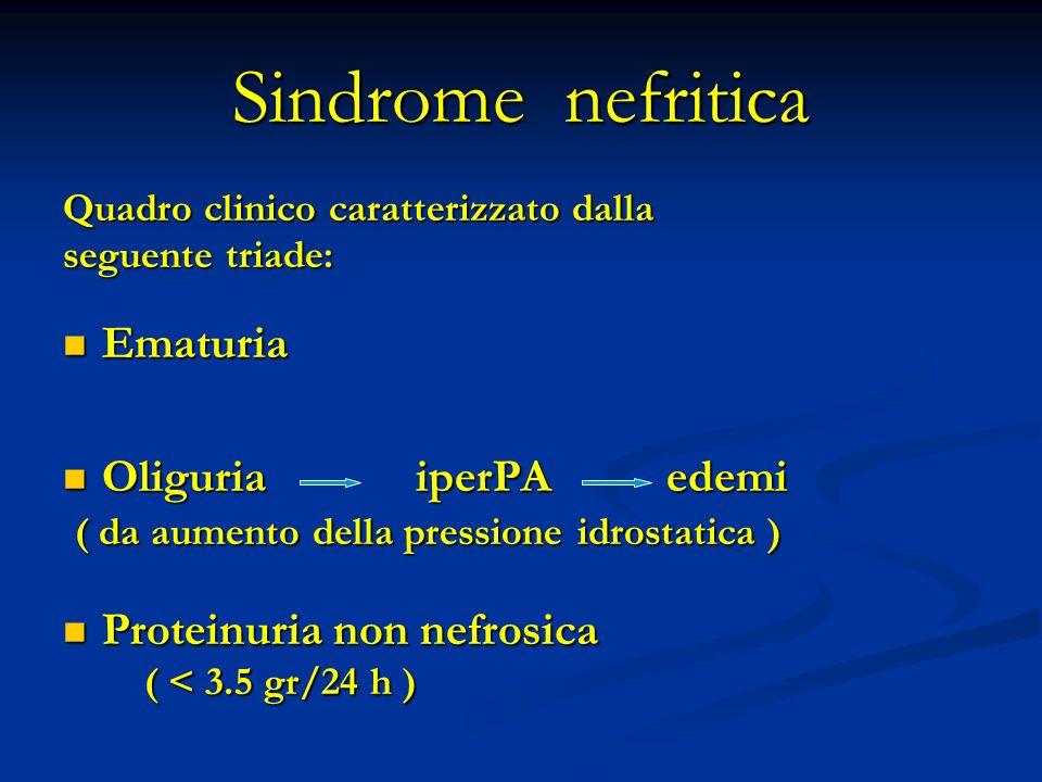 Sindrome nefritica Ematuria Oliguria iperPA edemi