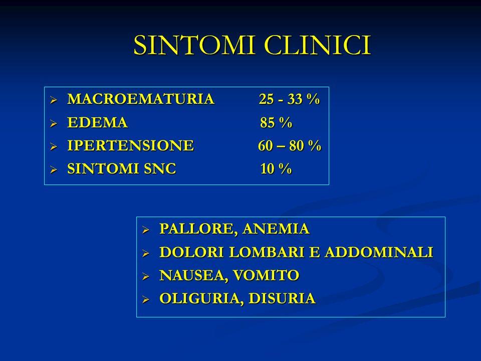 SINTOMI CLINICI MACROEMATURIA 25 - 33 % EDEMA 85 %