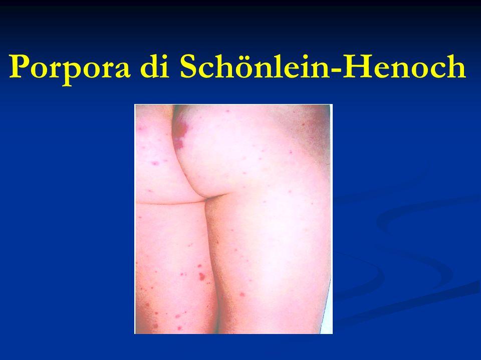 Porpora di Schönlein-Henoch