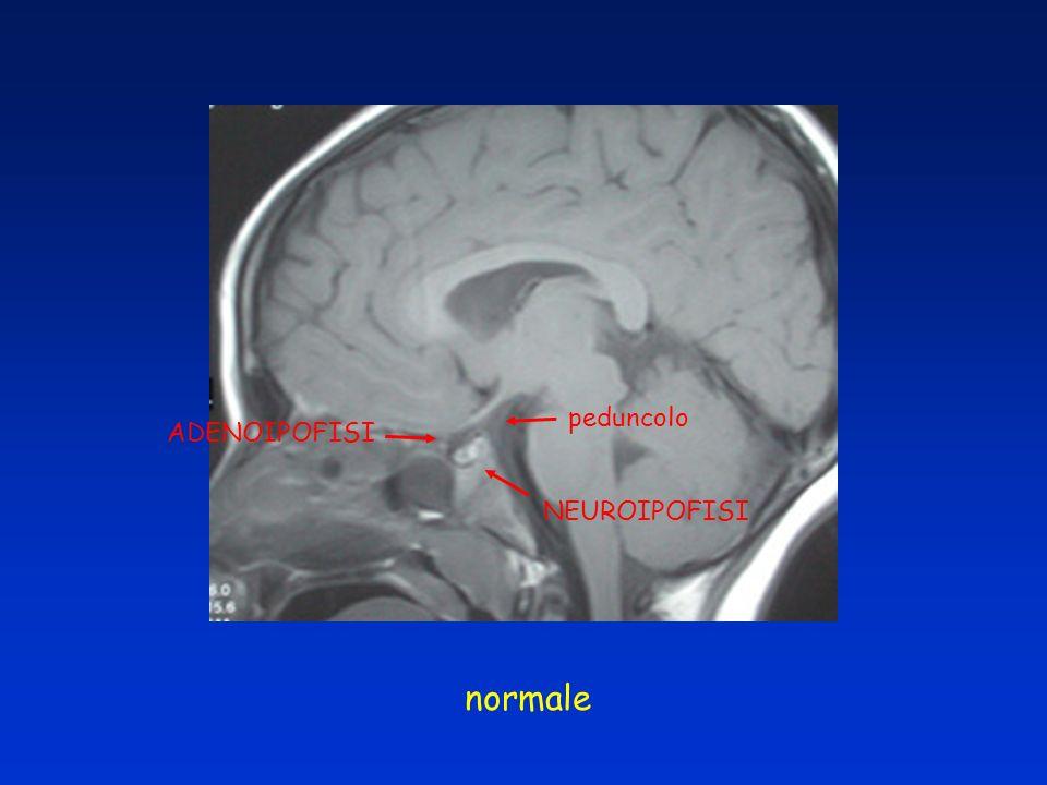 peduncolo ADENOIPOFISI NEUROIPOFISI normale