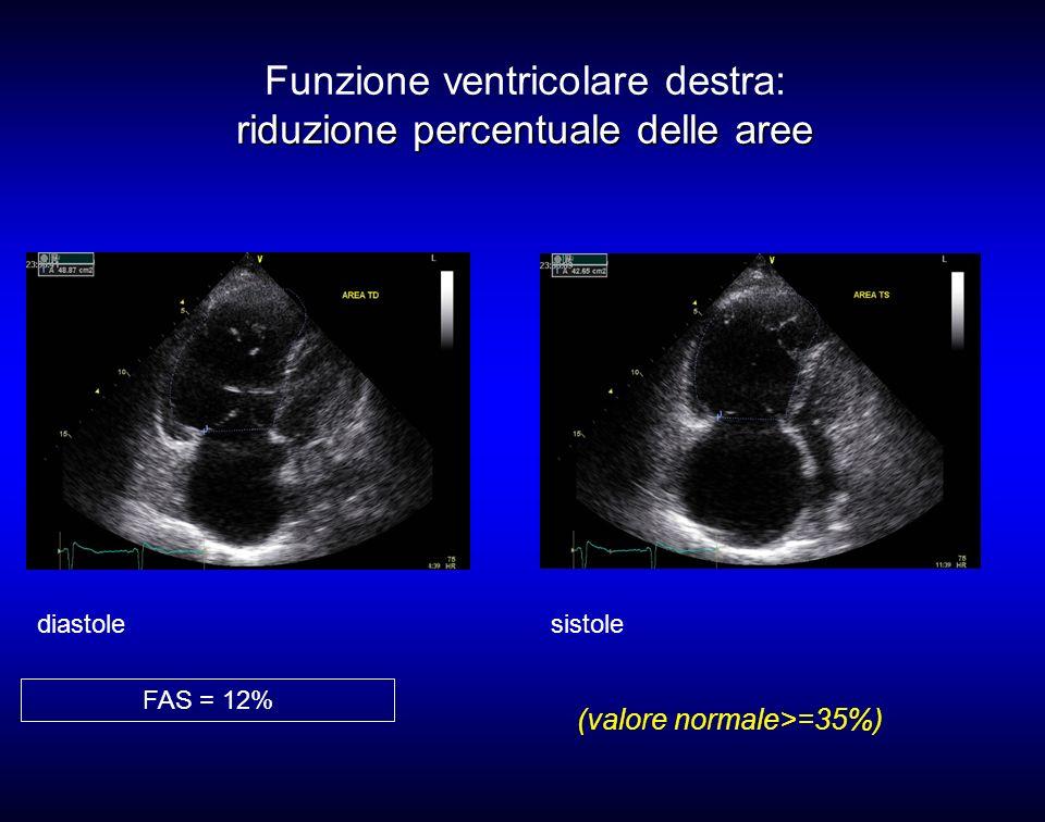 Funzione ventricolare destra: riduzione percentuale delle aree
