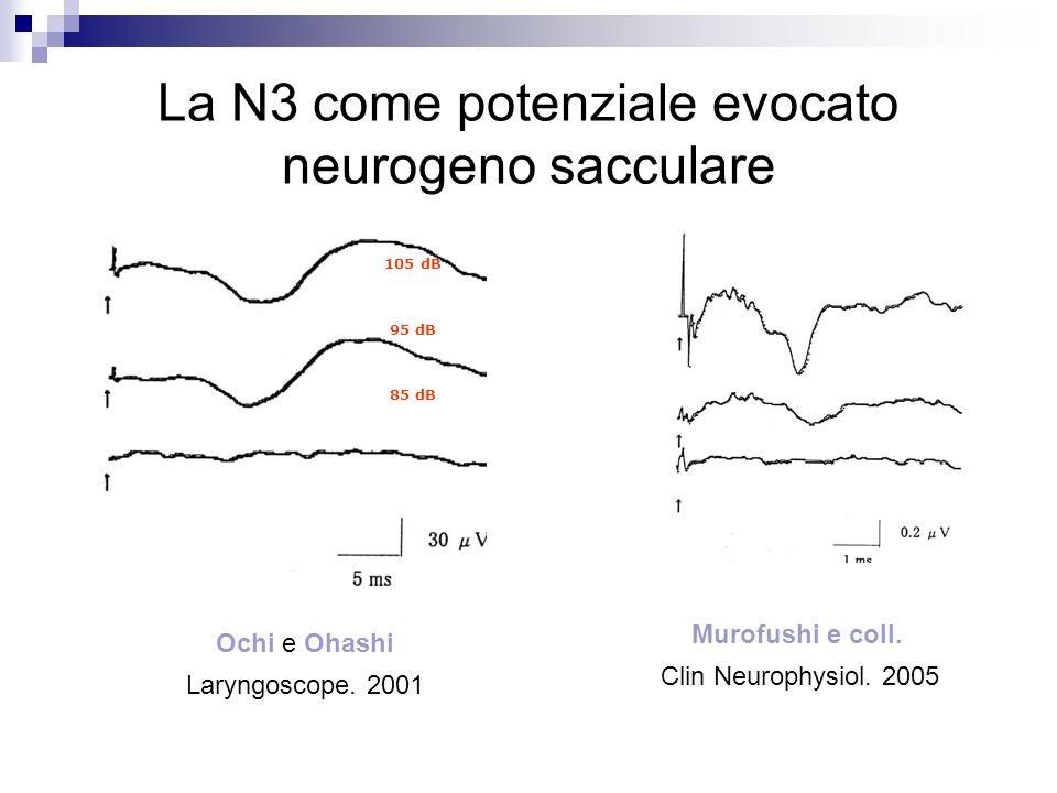 La N3 come potenziale evocato neurogeno sacculare