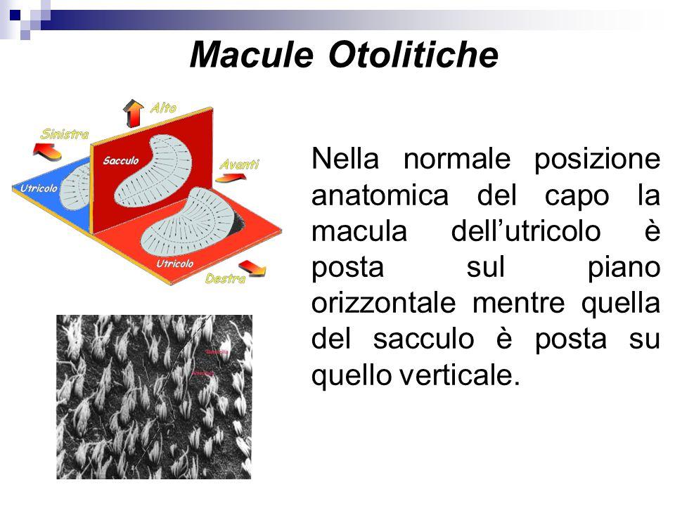 Macule Otolitiche