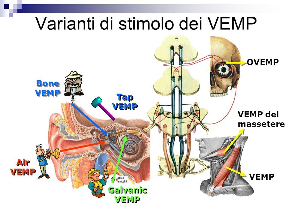 Varianti di stimolo dei VEMP
