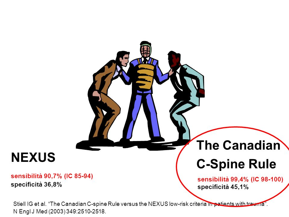 The Canadian C-Spine Rule NEXUS sensibilità 90,7% (IC 85-94)