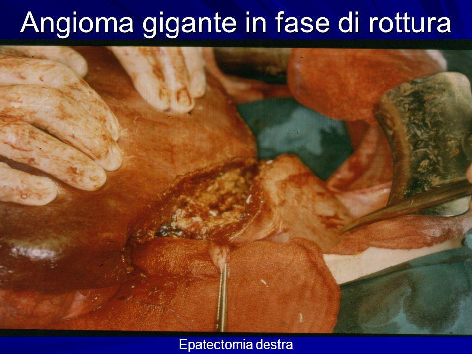 Angioma gigante in fase di rottura