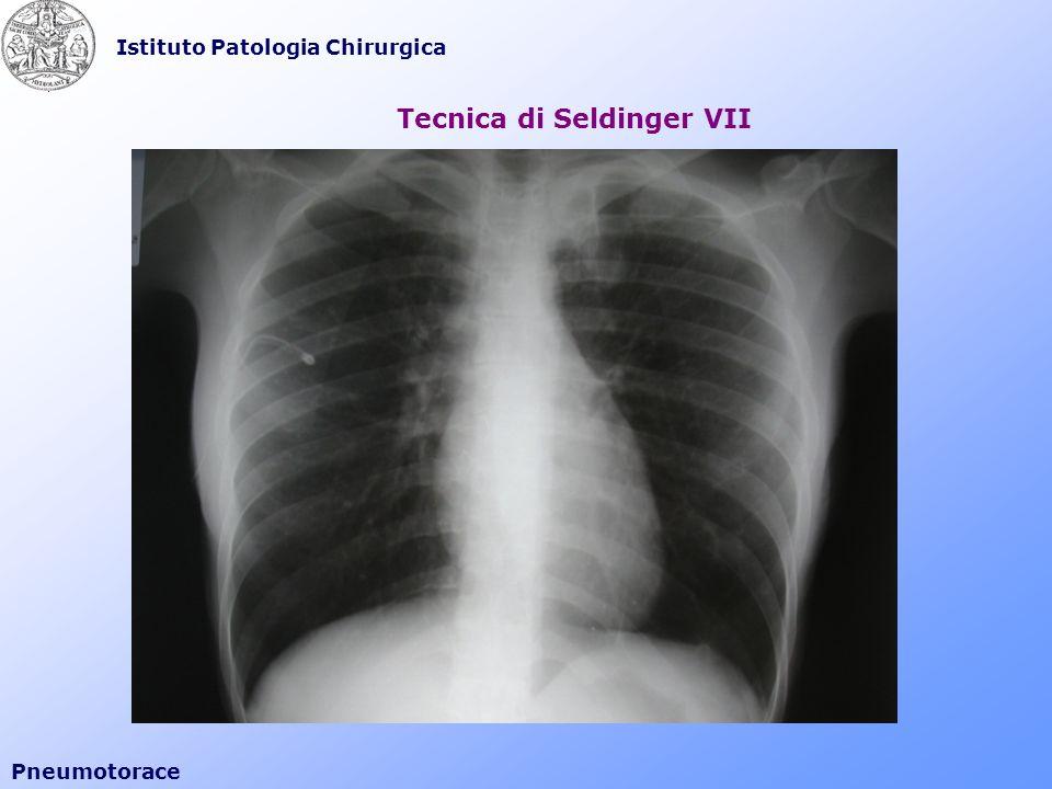 Tecnica di Seldinger VII