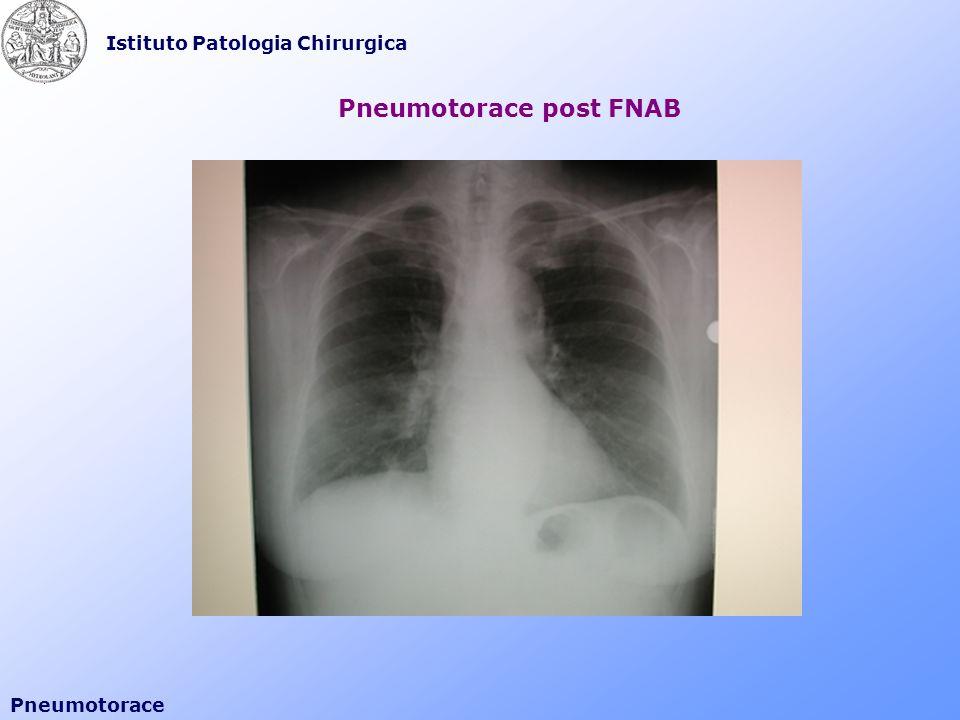 Pneumotorace post FNAB