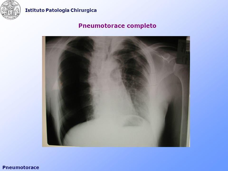 Pneumotorace completo