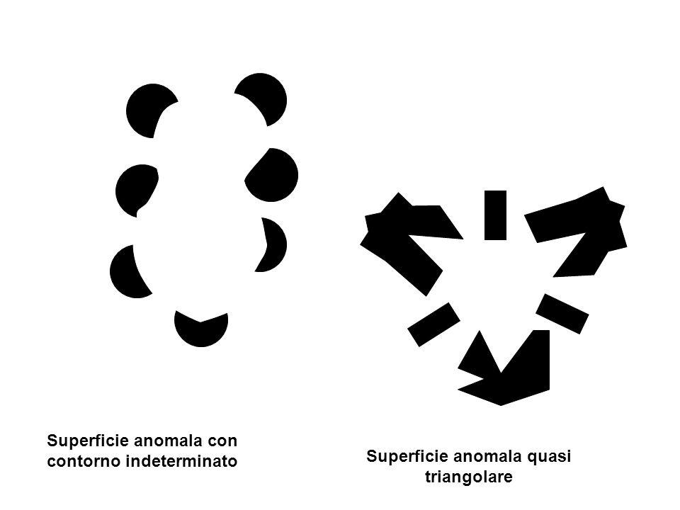 Superficie anomala quasi triangolare