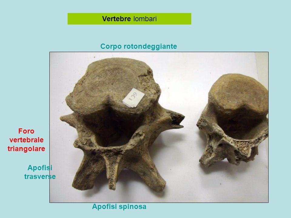 Foro vertebrale triangolare