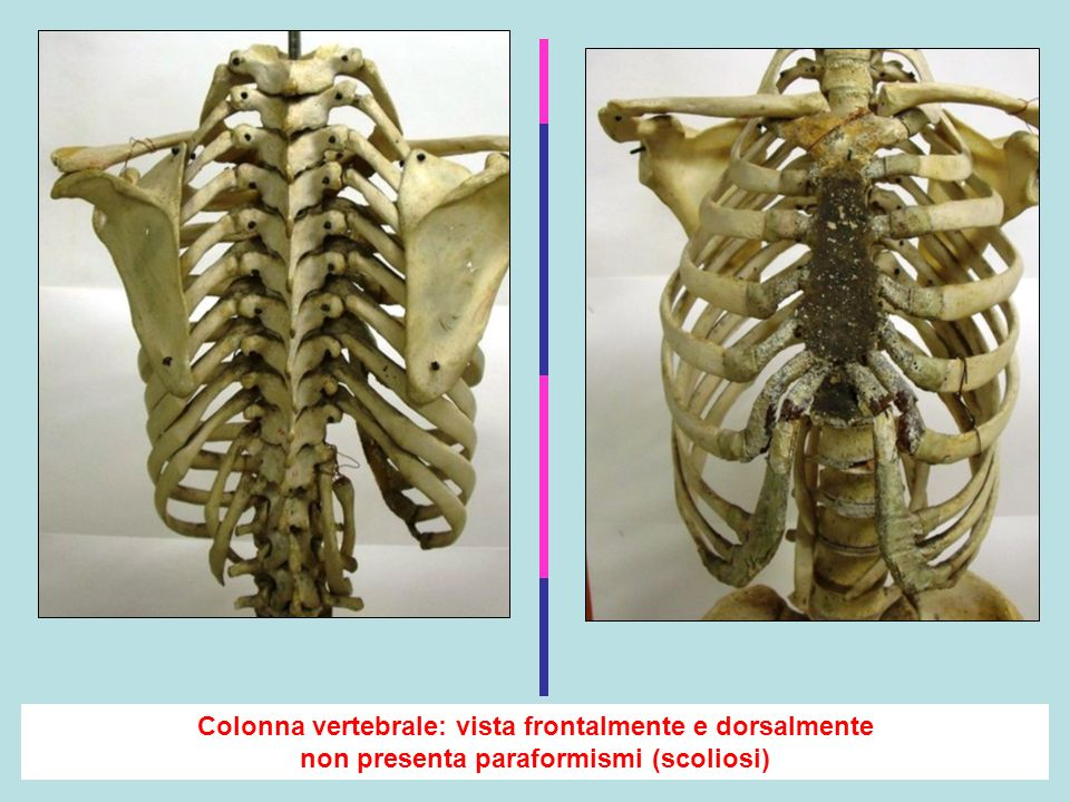 Colonna vertebrale: vista frontalmente e dorsalmente non presenta paraformismi (scoliosi)