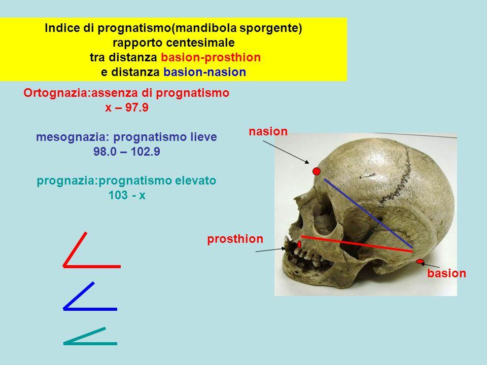 Indice di prognatismo(mandibola sporgente) rapporto centesimale tra distanza basion-prosthion e distanza basion-nasion