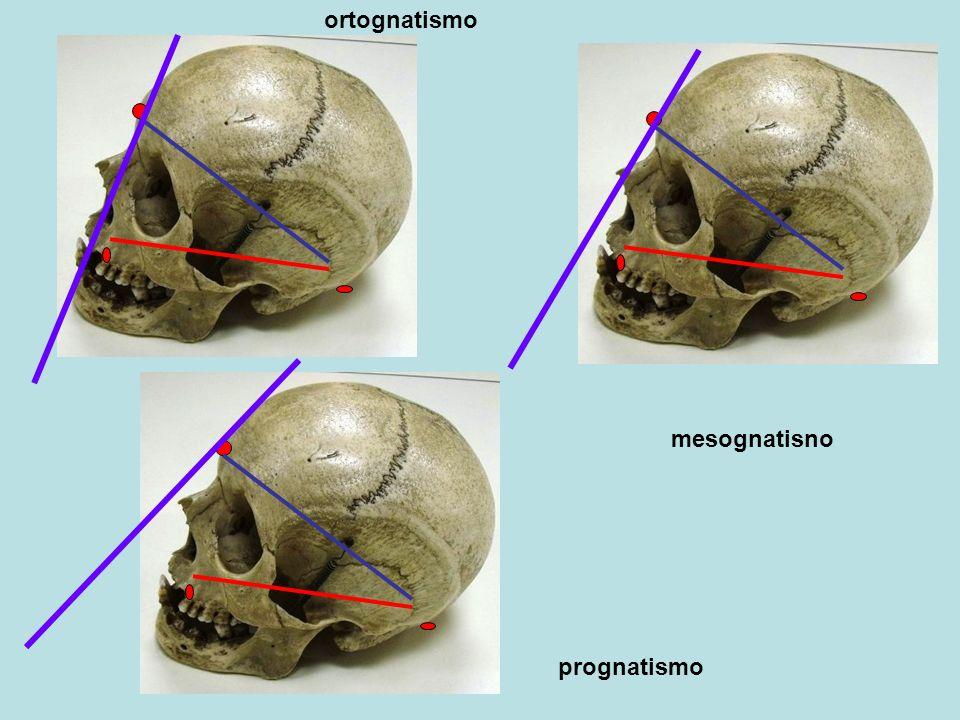 ortognatismo mesognatisno prognatismo