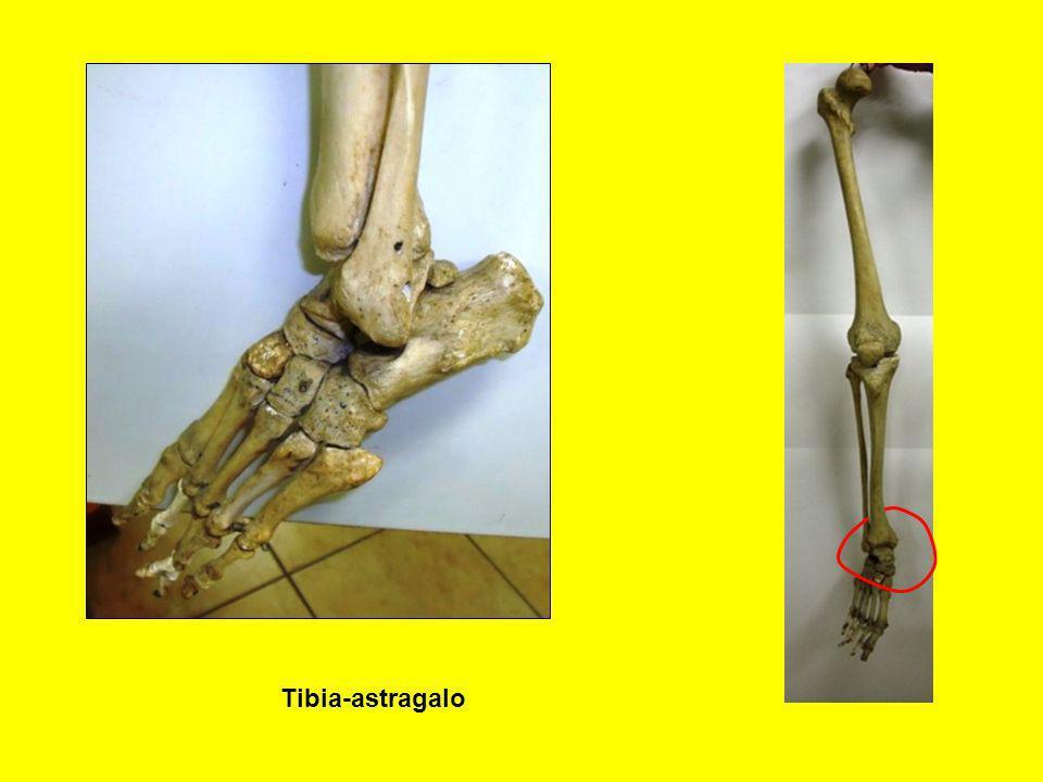 Tibia-astragalo