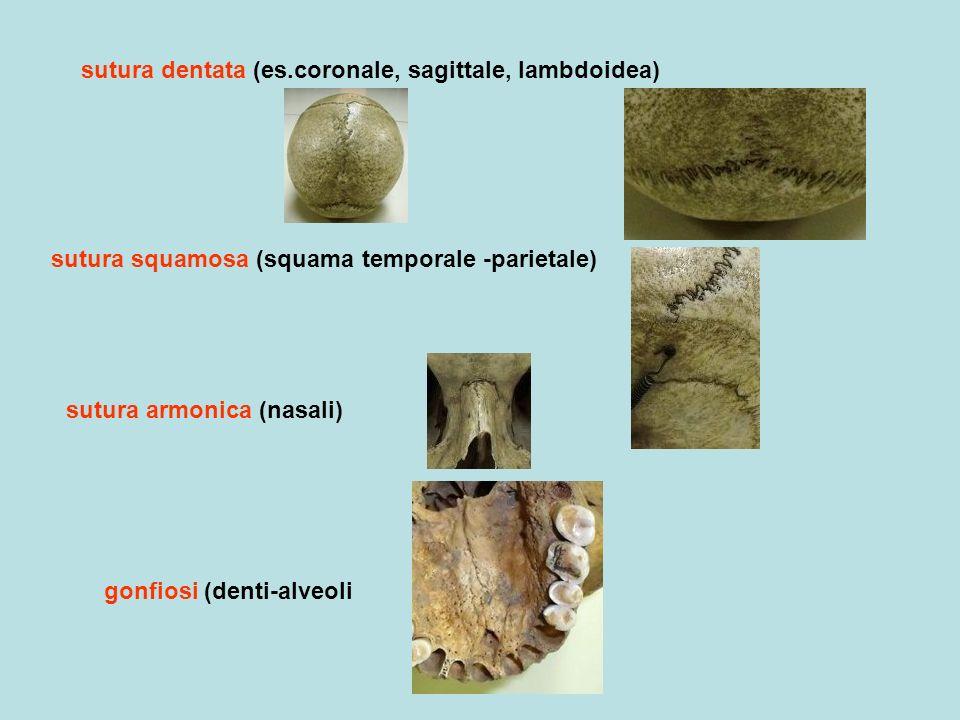 sutura dentata (es.coronale, sagittale, lambdoidea)