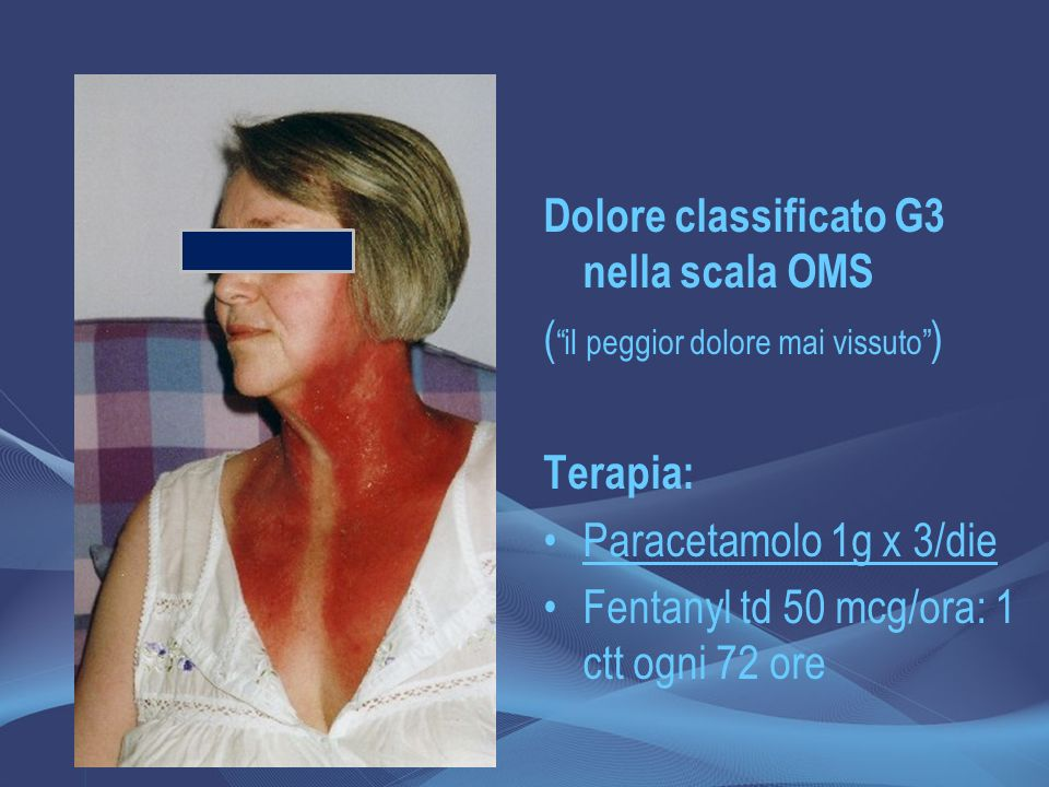 Dolore classificato G3 nella scala OMS
