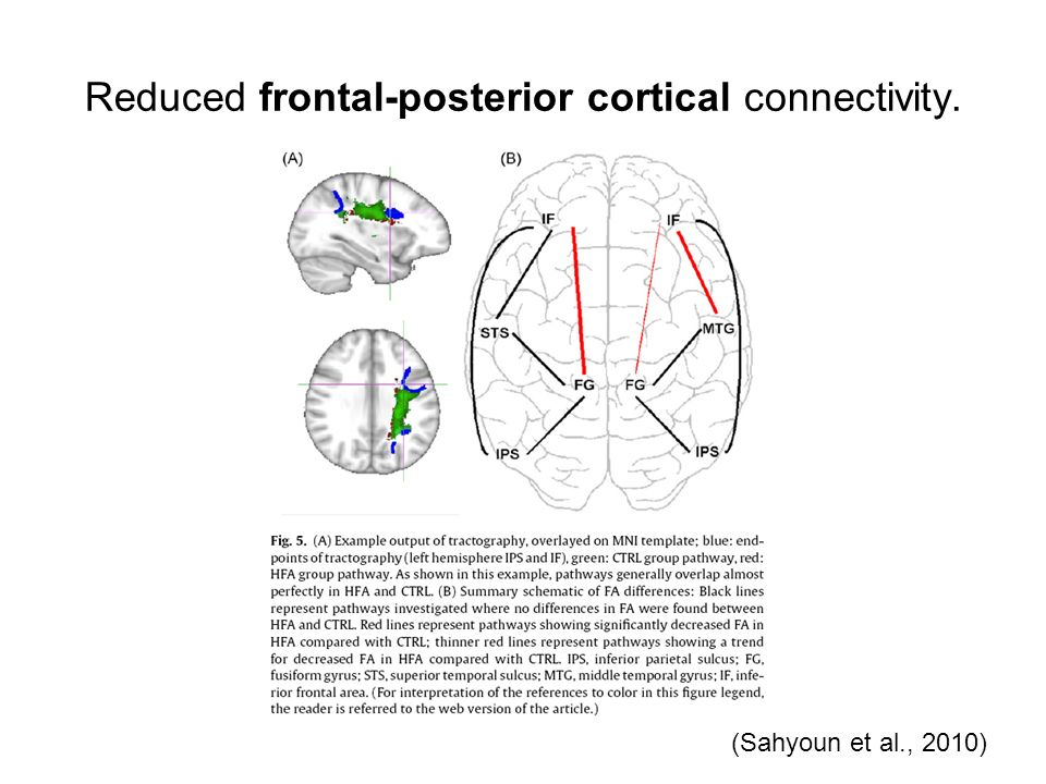 Reduced frontal-posterior cortical connectivity.