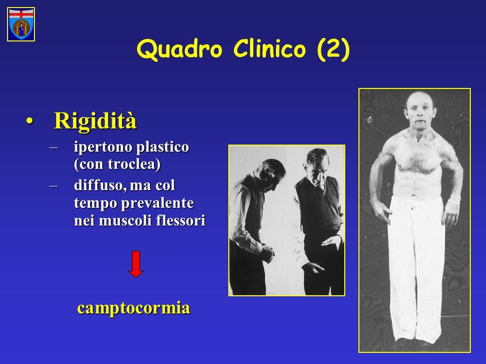 Quadro Clinico (2) Rigidità camptocormia