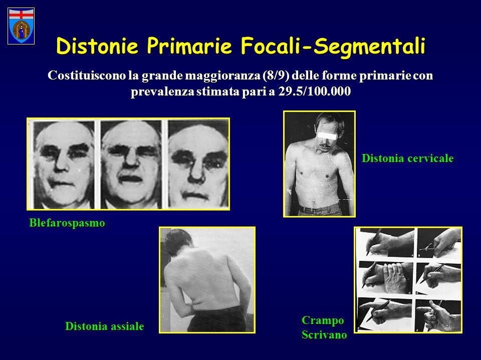Distonie Primarie Focali-Segmentali