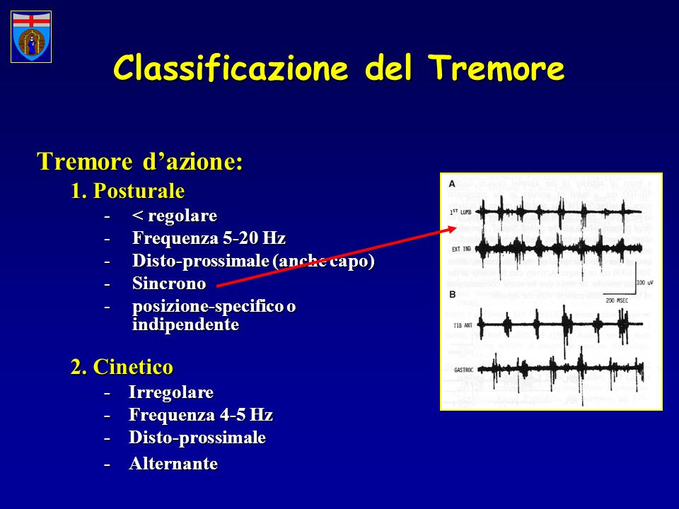Classificazione del Tremore