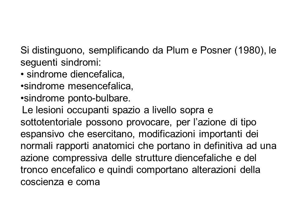 sindrome diencefalica, sindrome mesencefalica, sindrome ponto-bulbare.
