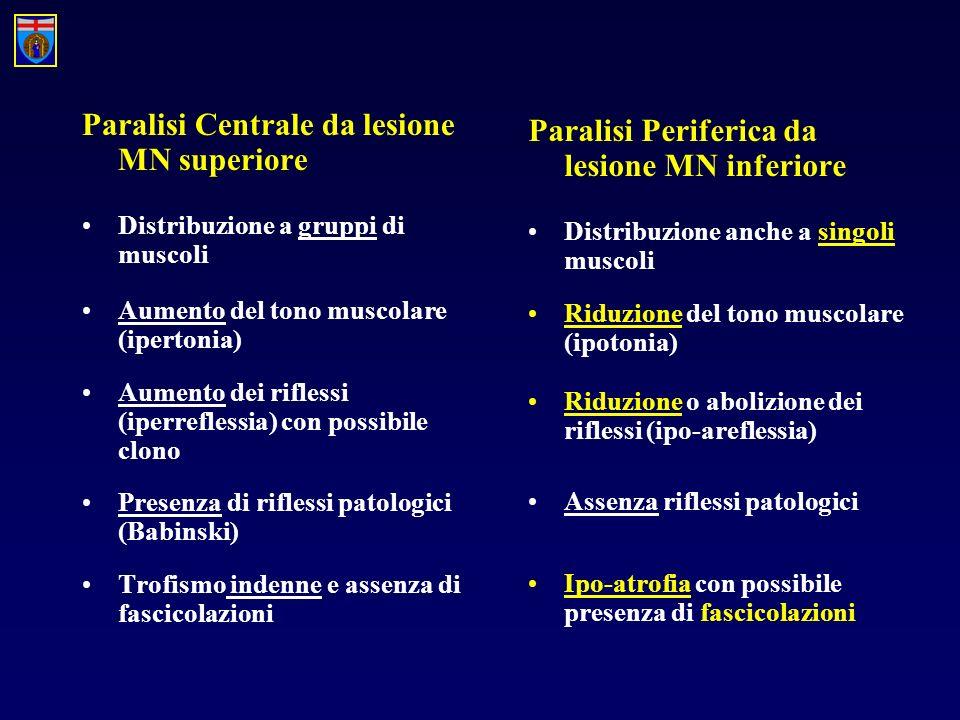 Paralisi Centrale da lesione MN superiore