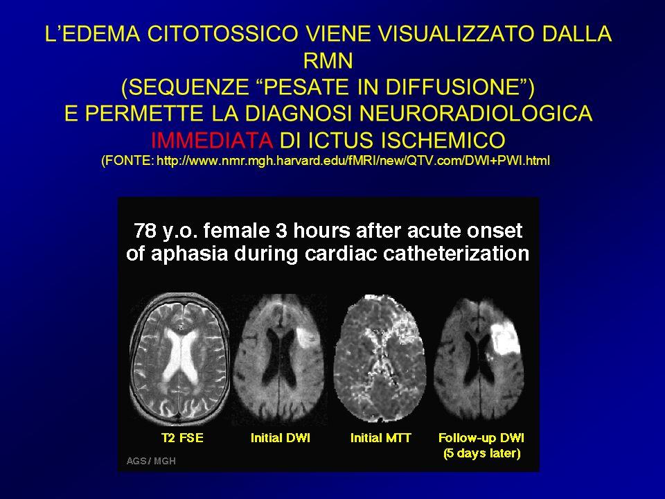 L'EDEMA CITOTOSSICO VIENE VISUALIZZATO DALLA RMN (SEQUENZE PESATE IN DIFFUSIONE ) E PERMETTE LA DIAGNOSI NEURORADIOLOGICA IMMEDIATA DI ICTUS ISCHEMICO (FONTE: http://www.nmr.mgh.harvard.edu/fMRI/new/QTV.com/DWI+PWI.html)