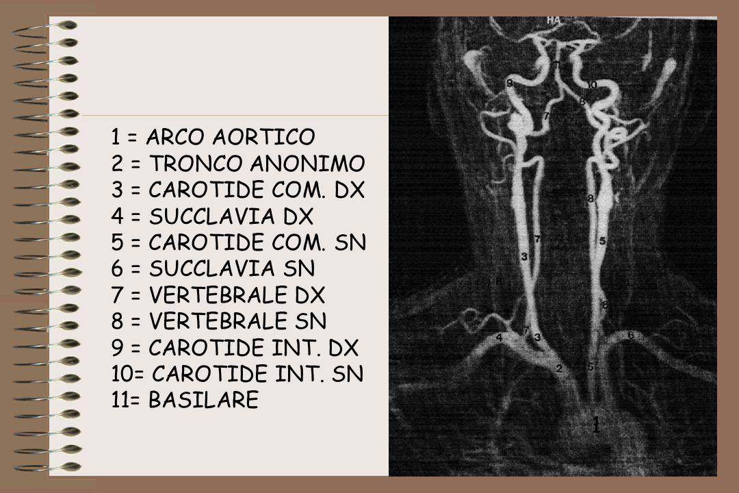 1 = ARCO AORTICO 2 = TRONCO ANONIMO. 3 = CAROTIDE COM. DX. 4 = SUCCLAVIA DX. 5 = CAROTIDE COM. SN.