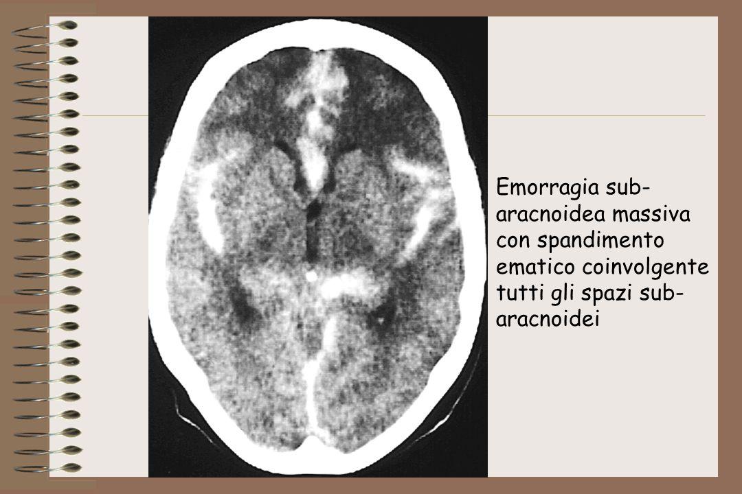 Emorragia sub- aracnoidea massiva. con spandimento.