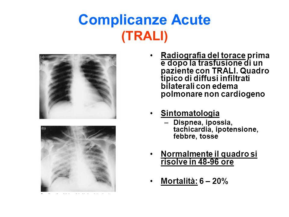 Complicanze Acute (TRALI)