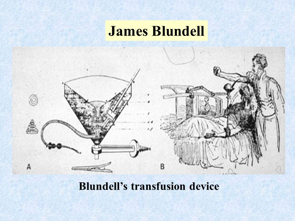 Blundell's transfusion device