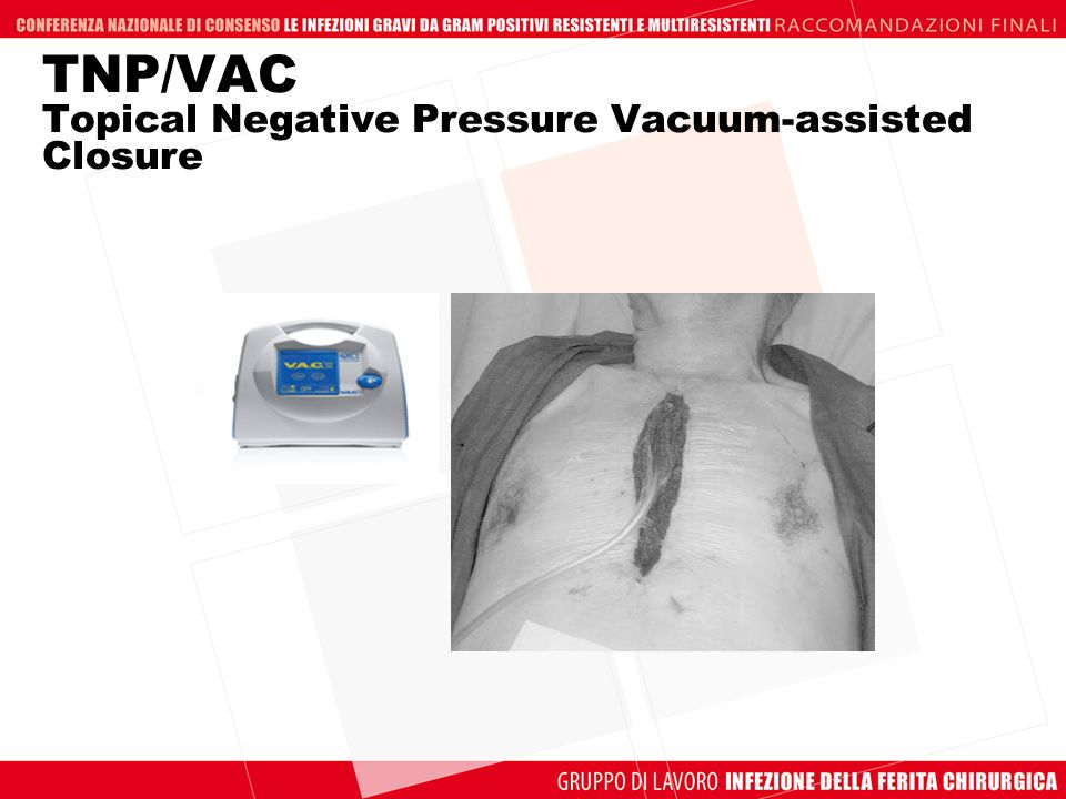 TNP/VAC Topical Negative Pressure Vacuum-assisted Closure