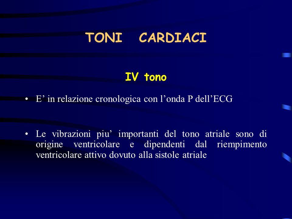 TONI CARDIACI IV tono. E' in relazione cronologica con l'onda P dell'ECG.