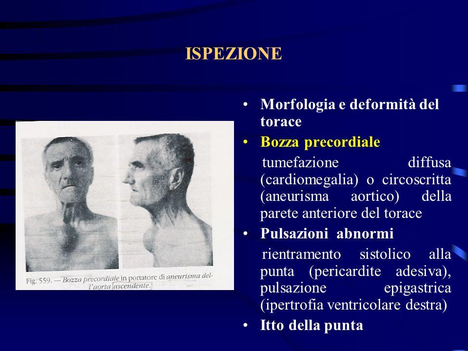 ISPEZIONE Morfologia e deformità del torace Bozza precordiale