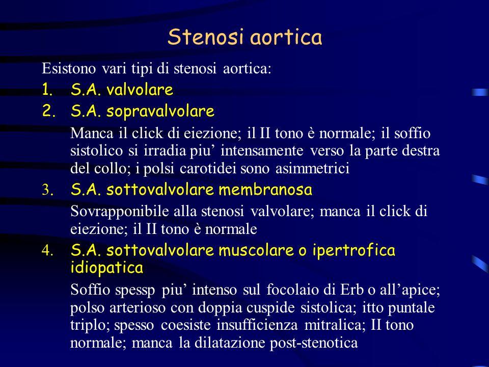 Stenosi aortica Esistono vari tipi di stenosi aortica: S.A. valvolare