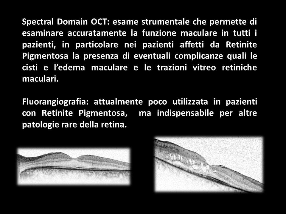 Spectral Domain OCT: esame strumentale che permette di esaminare accuratamente la funzione maculare in tutti i pazienti, in particolare nei pazienti affetti da Retinite Pigmentosa la presenza di eventuali complicanze quali le cisti e l'edema maculare e le trazioni vitreo retiniche maculari.