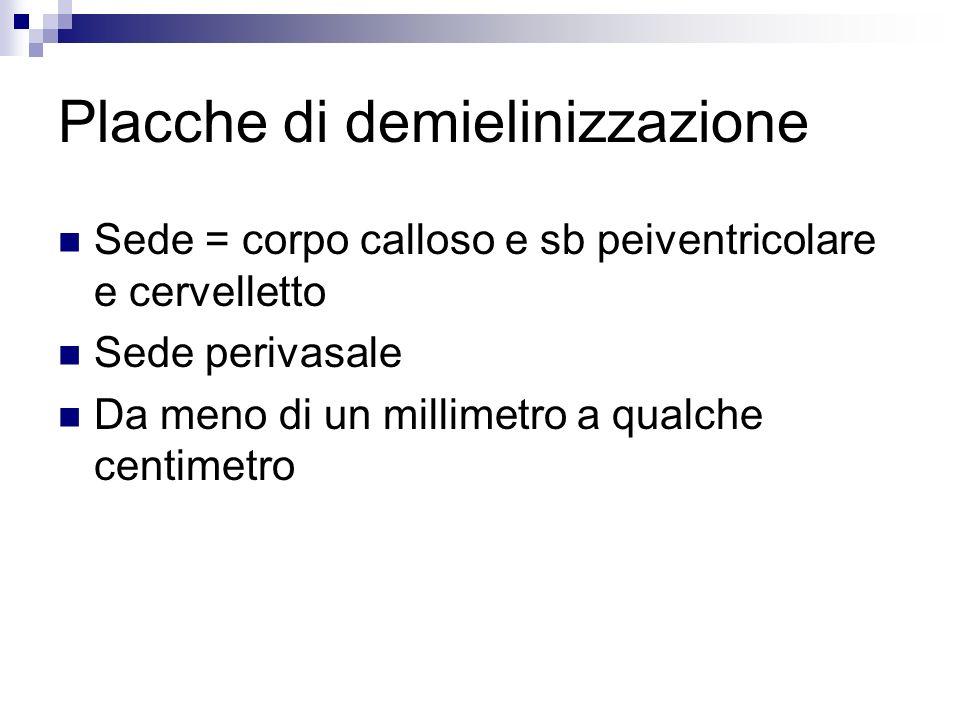 Placche di demielinizzazione