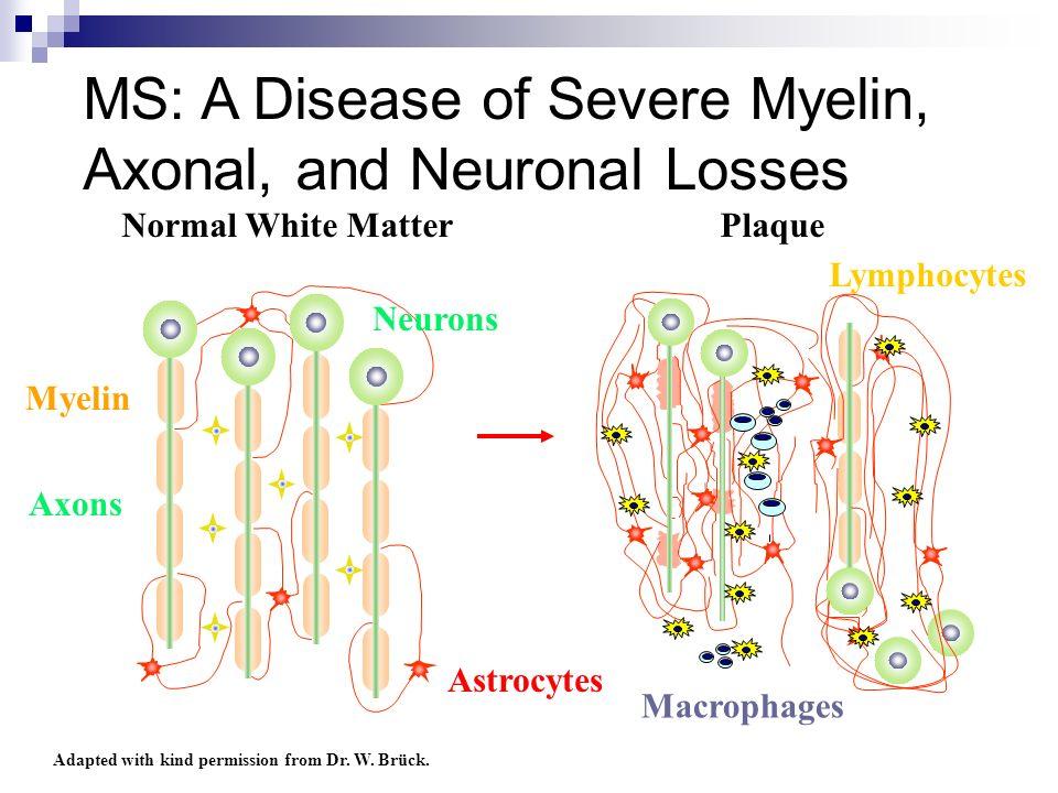 MS: A Disease of Severe Myelin, Axonal, and Neuronal Losses